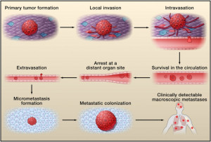 the-invasion-metastasis-cascade-tumor-cells-exit-their-primary-sites-of-growth-local